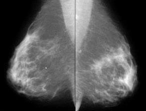 mammo breast CA